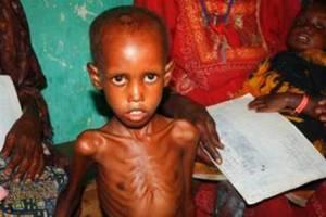 La hambruna se hace visible en miles de niños somalíes como él (Acción contra el Hambre).
